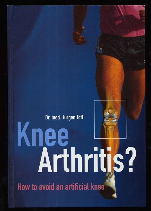 Knee arthritis? How to avoid an artificial knee.