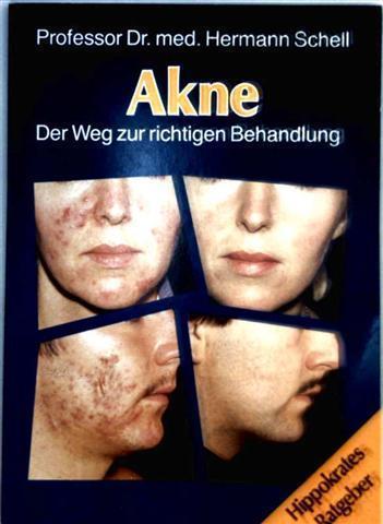 Akne - der Weg zur richtigen Behandlung (Hippokrates Ratgeber)