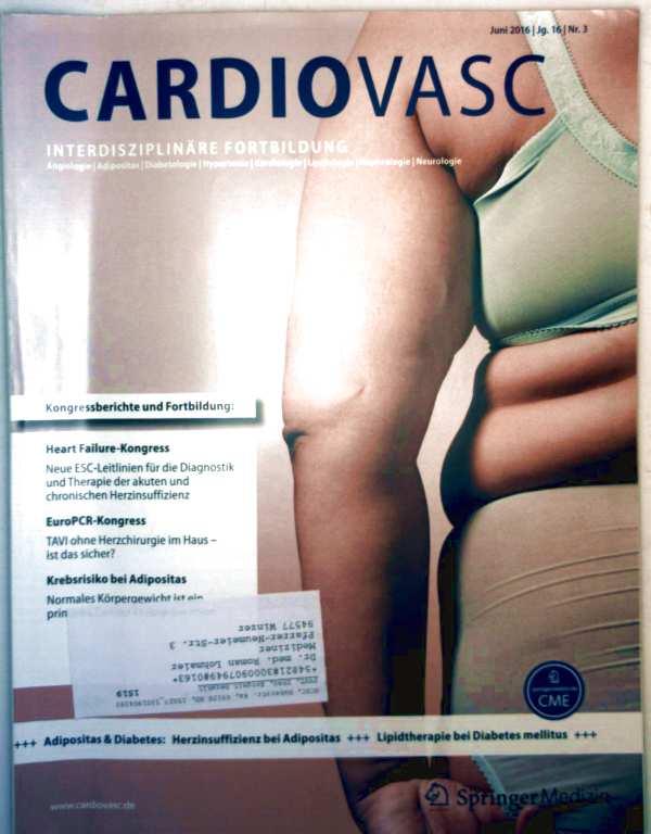 Cardiovasc, Jg. 16 Nr. 03, Juni 2016 - Krebsrisiko bei Adipositas