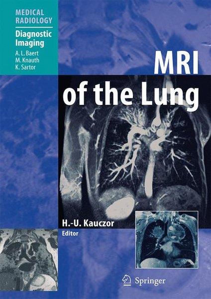 MRI of the Lung, - Kauczor, H.-U. (Ed.)