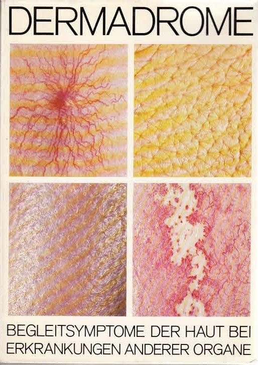 Dermadrome - Begleitsymptome der Haut bei Erkrankungen anderer Organe